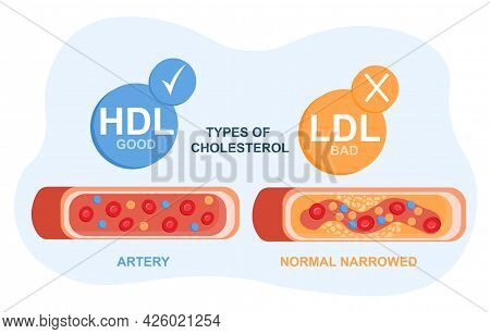 Types Of Cholesterol In The Blood Concept. High-and Low-density Lipoproteins. Section Of A Healthy A