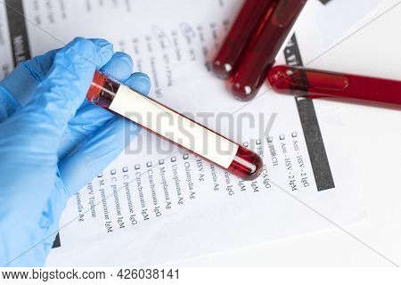 Technician Holding Blood Tube Test In The Research Laboratory. Coronavirus Testing. Doctor Taking A