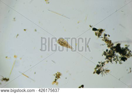 Ciliates Stentor Found In Freshwater Pond Under The Light Microscope