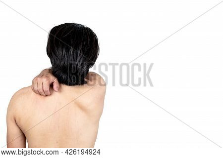 Back Of Man Using A Hand To Scratch The Back Help Scratch The Skin Itching Area From Dermatitis, On