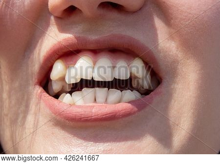 Curved Female Teeth, Before Installing Braces. Close - Up Of Teeth Before Treatment By An Orthodonti