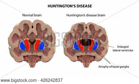 Coronal Section Of A Brain Of A Person With Huntington's Disease