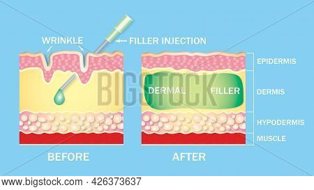 Injectable Cosmetic Filler Or Dermal Fillers. Before And After