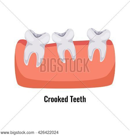 Dental Oral Problem Poster With Crooked Teeth Flat Vector Illustration