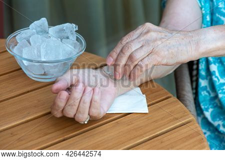 Senior Woman Holds Ice Cube On Her Wrist. How To Stay Cool In Hot Weather. Beat The Heat. No Face, O