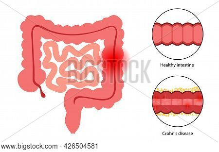 Crohns Disease Concept. Inflamed And Healthy Intestine. Inflammatory Bowel Disease. Inflammation Of