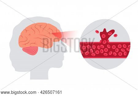 Hemorrhagic Brain Stroke Concept. Apoplexy, Cerebral Hemorrhage, Headache Problem. Apoplectic And Cv