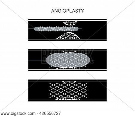 Coronary Artery Stent In Ischaemic Heart Muscle. Angioplasty Technology. Ihd Treatment. Cardiovascul