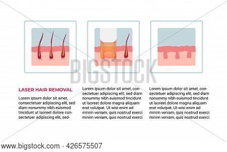 Laser Hair Removal Concept With Skin Areas And Hairs. Stages Of The Procedure For Removal. Vector Il