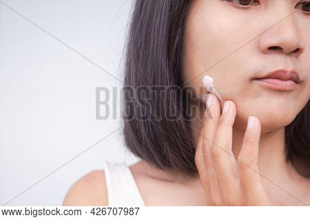 Woman Applying Cream Moisturizer On Face Close Up. Authentic Skin Tan Asian Thailand. Sunscreen For