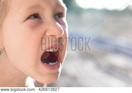 Cute Little Baby Opened Her Mouth And Showed Wobbly Baby Tooth