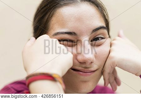 Portrait Of Bored Young Woman With Hands On The Face