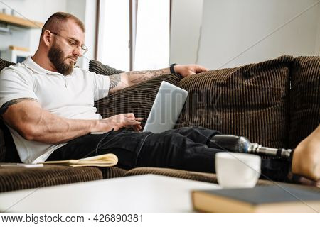 White man with prosthesis using laptop while siting on couch at home