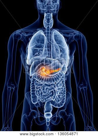 3d rendered, medically accurate illustration of pancreas cancer