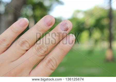 Finger With Onychomycosis. A Toenail Fungus.. - Soft Focus