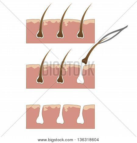 Example of hair removal from skin with tweezers over white background