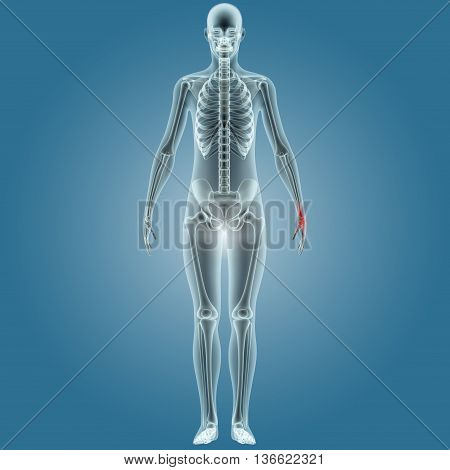 3D Illustration of Human Body Bone Joint Pains