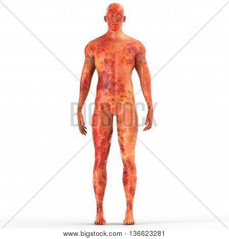 3D Illustration of Human Male Muscle Body with Burns