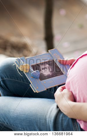 pregnant women watching sonography pictures of their baby