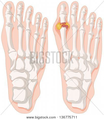 Gout toe in human feet illustration