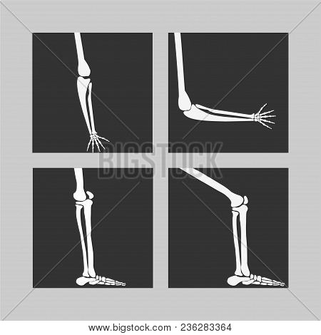 Vector Human Knee And Foot Leg And Hands Arms In A Bent And Unbent View1