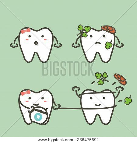 Step Of Tooth Cleaning Food Stuck In Teeth By Floss To Protection Decay Tooth, Before And After - De