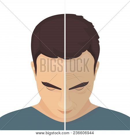 Close Up Vector Portrait Of A Man Before And After Cosmetic Procedure. Beauty Facial Injections For