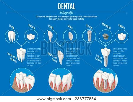 Isometric Prosthetic Dentistry Infographic Concept With Crown Veneer And Structure Of Dental Implant