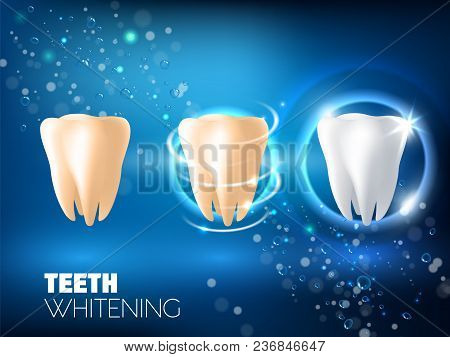Teeth Whitening Concept Vector Realistic Illustration. Tooth Before Whitening, During And After Whit
