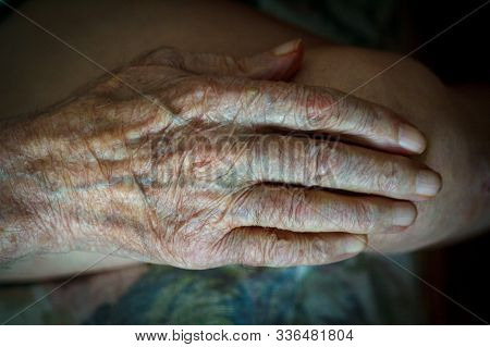 The Process Of Aging Of Human Skin - Wrinkled Hands Of A Very Old Man Who Lived 90-100 Years With Dr