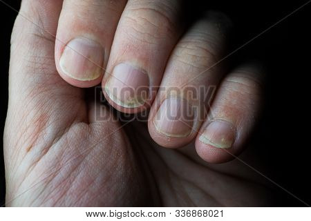 Psoriasis Is An Autoimmune Disease That Affects The Nail And Skin. Close Up Of Psoriasis Nail On Dar