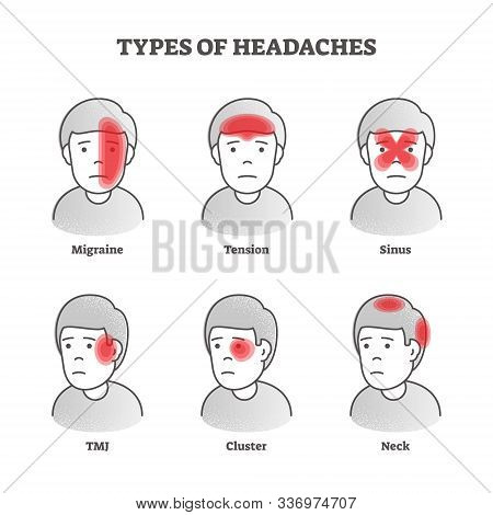 Types Of Headaches Vector Illustration. Labeled Educational Brain Pain Set. Various Health Problem W