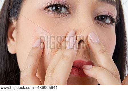 Concept Asian Girls Have Acne : Closeup, Portrait Face Of A Beautiful Asian Woman Using Her Hands To