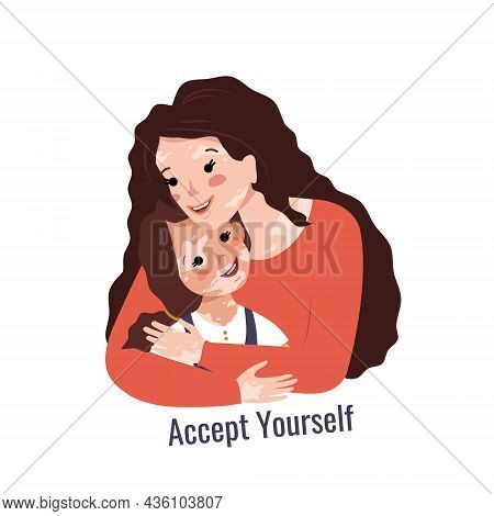 Beautiful Mother With Long Hair And Vitiligo Hugs Her Daughter. Inscription Accept Yourself. Vector