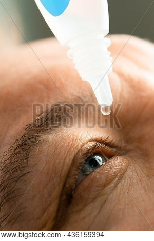 A Man Puts Eye Drops In His Eyes Before Putting On Contact Lenses. Solution Vision Problems.