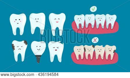 Set Of Clean And Sick Dental Characters On Blue Background, Teeth Whitening. Dental Health Concept.