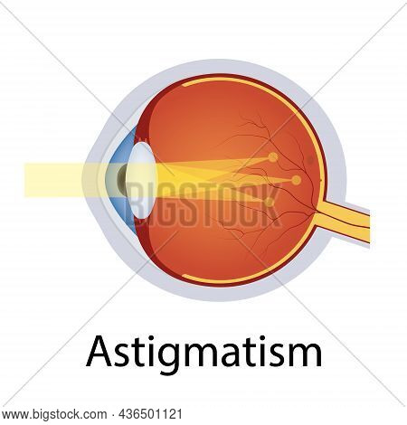 Astigmatism And Vision Disorders Illustration. Eyes Defect Concept. Detailed Anatomy Eyeball With As