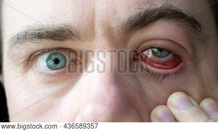 Close Up Of Man Hand Touch Severe Bloodshot Red Blood Eye Affected By Conjunctivitis Or After Allerg