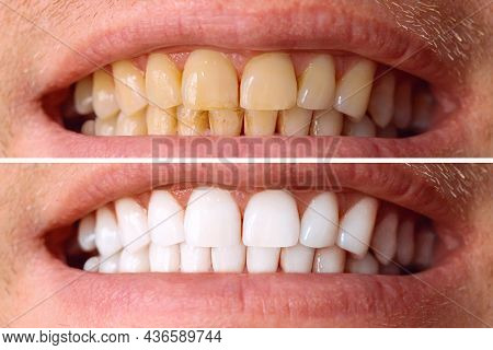 Teeth Before And After Whitening. Over White Background. Dental Clinic Patient. Image Symbolizes Ora