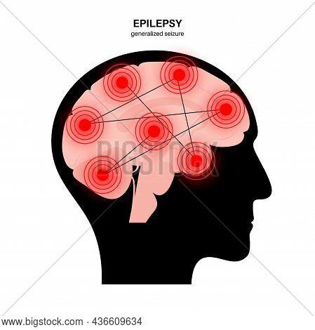 Generalized Seizure. Epilepsy Disease Concept. Abnormal Brain Activity. Pain Or Spasm In Human Head.