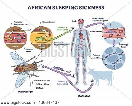 African Sleeping Sickness Or African Trypanosomiasis Illustration Diagram. Insect Borne Parasitic In