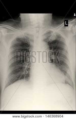 xray image show chest xray and cardiomegaly