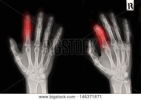 xray lright hand show closed fracture index finger