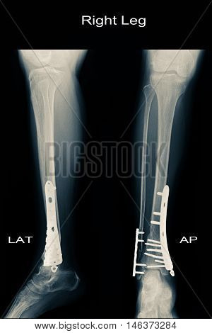 xray image show closed fracture fibula and tibia and post operation