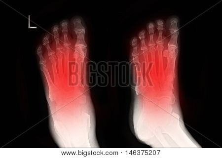 xray image show left foot AP,LAT  and fracture