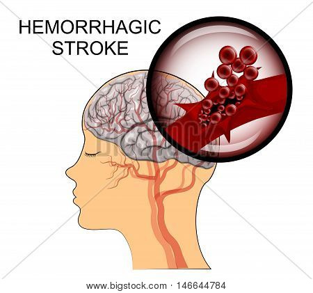 illustration of a rupture of the vessel. hemorrhagic stroke. insult. red blood cells.