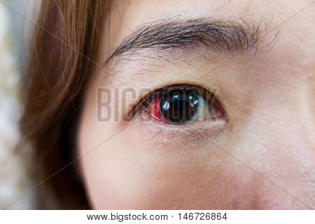 Eye injury or infected for healthy concept macro closeup