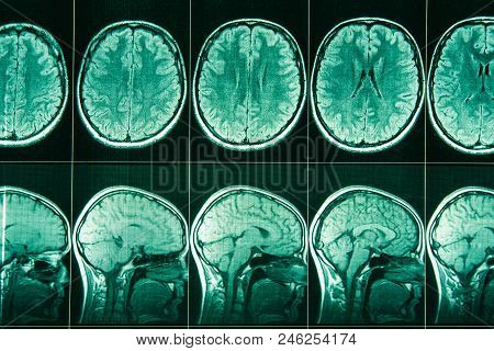 Mri Of The Head And Brain Of A Person.