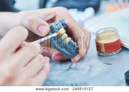 dental technician work. prosthesis production. teeth prototype construction