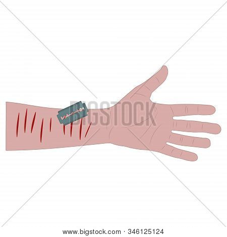 White Mans Hand With Bleeding Cuts And A Blade. Suicide Attempt. White Background Isolated Stock Vec